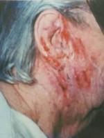 treating eczema with emu oil